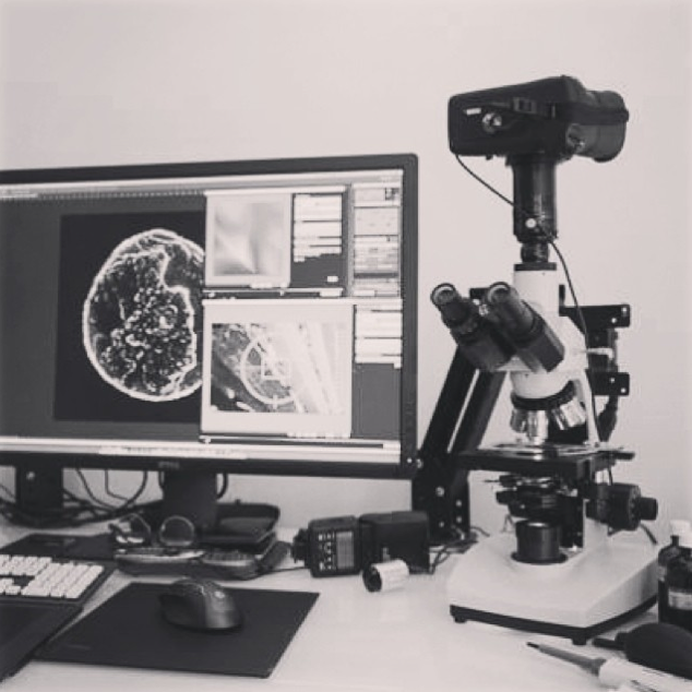 tear-photography-microscope-setup
