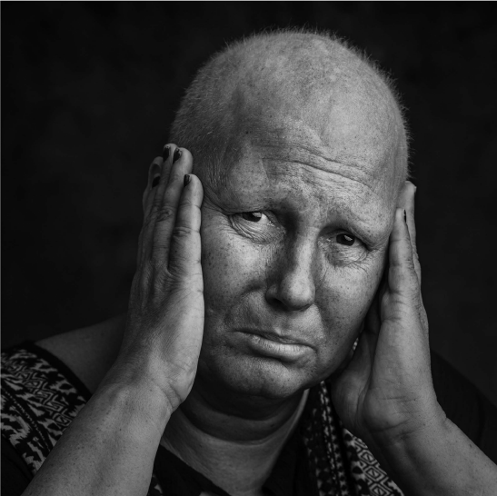 Faces of Cancer by Imelda Bell FMPA